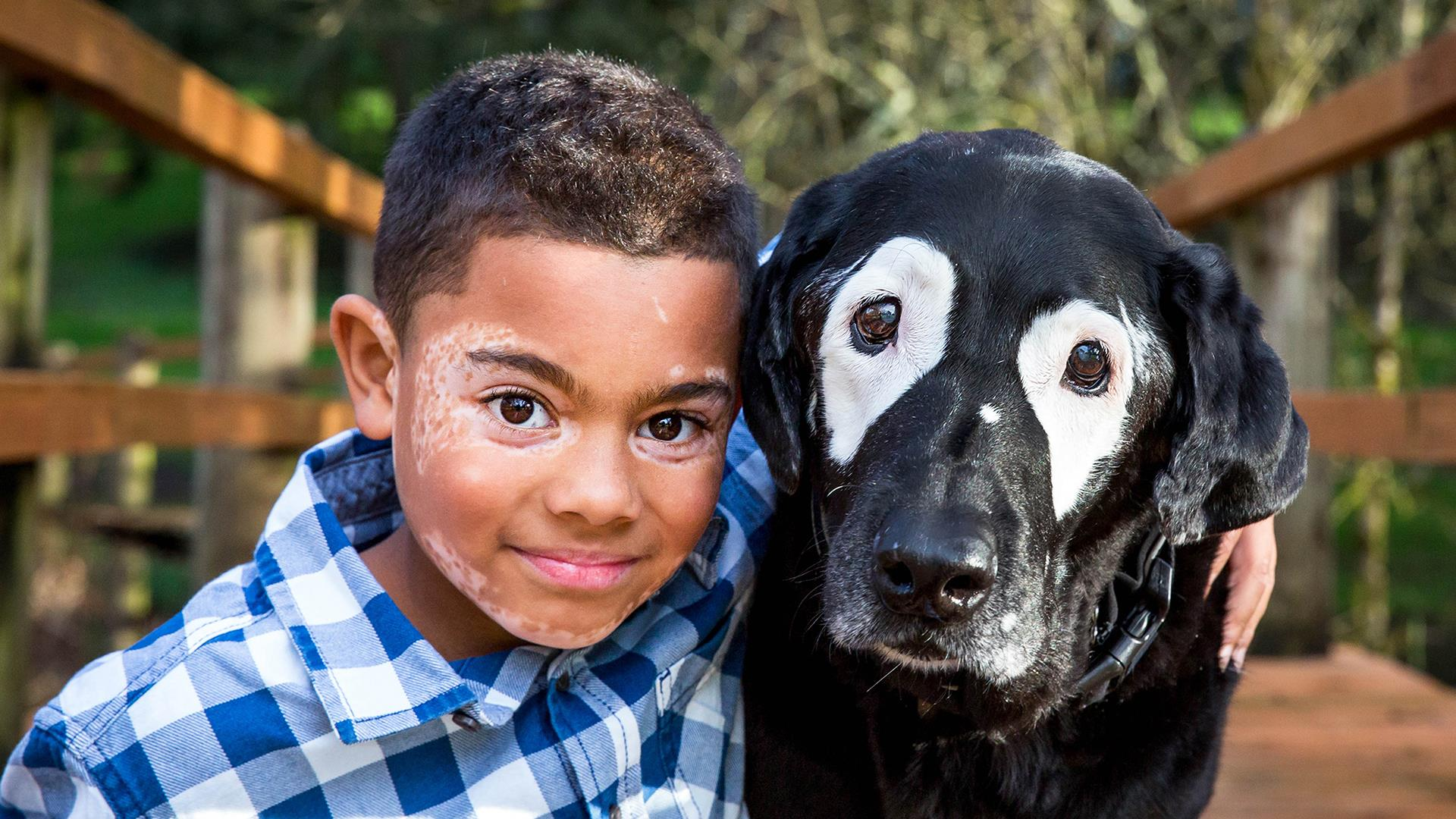 vitiligo, boy, dog