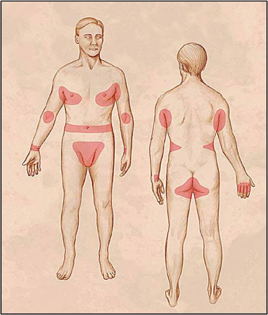 Rühesség kezelése & tünetei - Oktogon Medical Center
