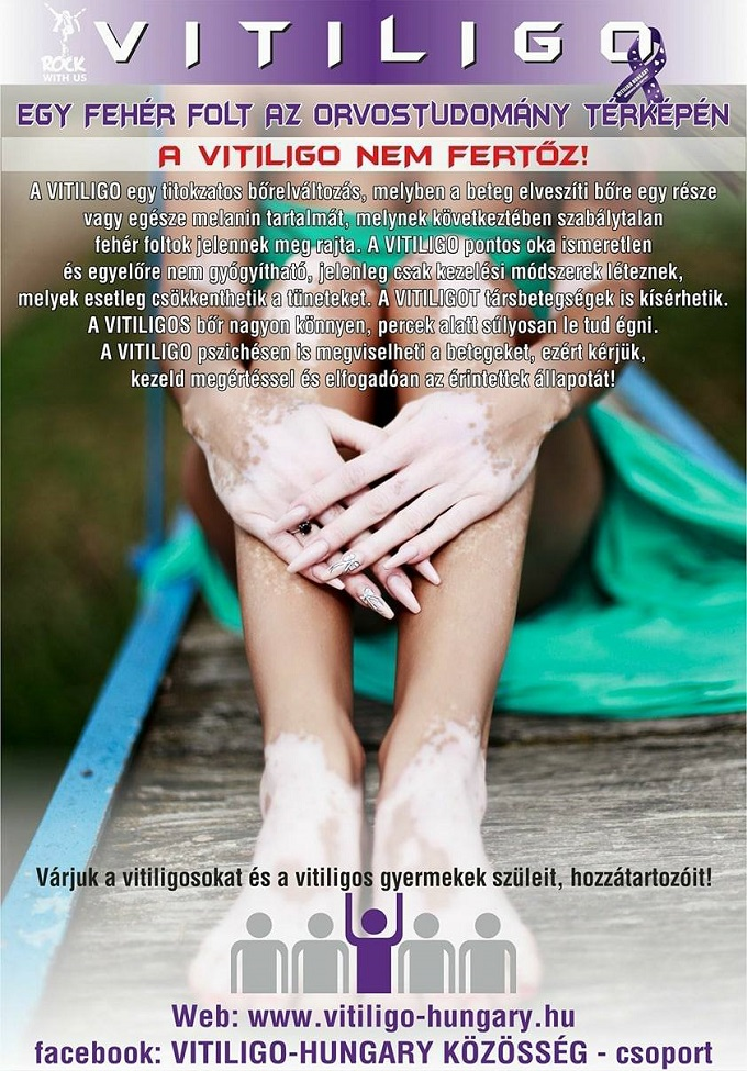 vitiligo_plakat, derma.hu