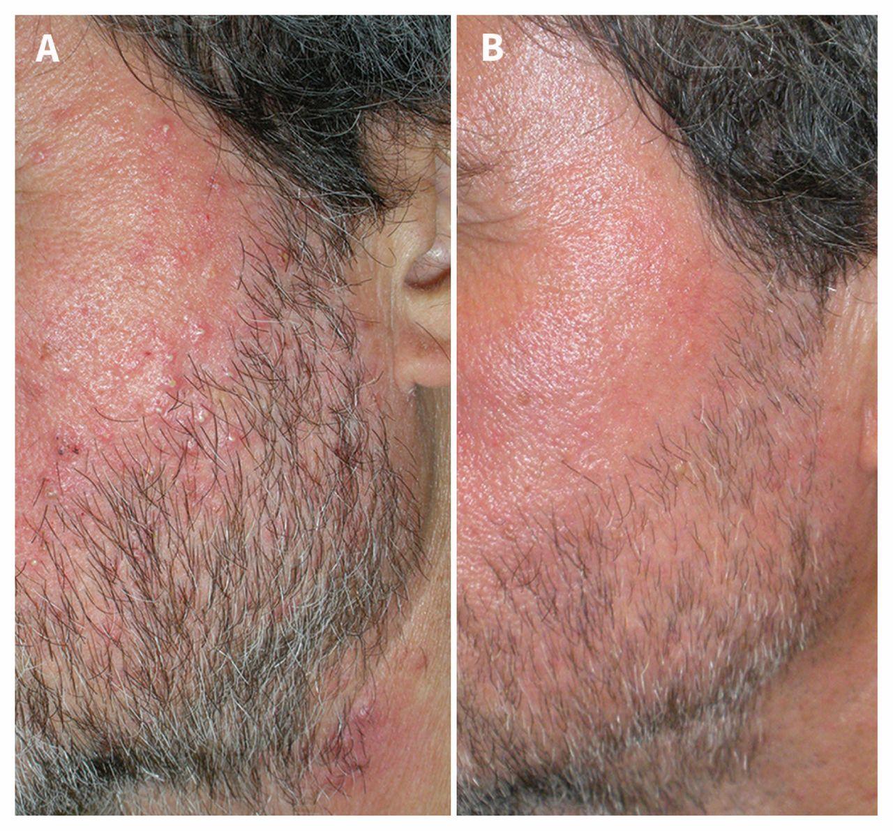 (A) Arcpír, számos papula és gennyhólyag egy 66 éves férfi arcán és homlokán. (B) Jelentős javulás az orális ivermectinnel történő kezelés után.